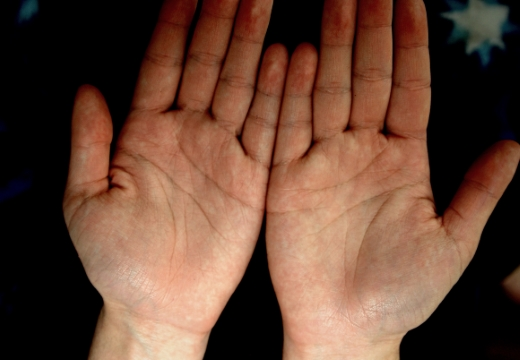руки ладонями вверх